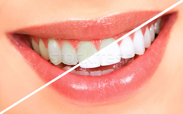 Stock photo: Teeth whitening