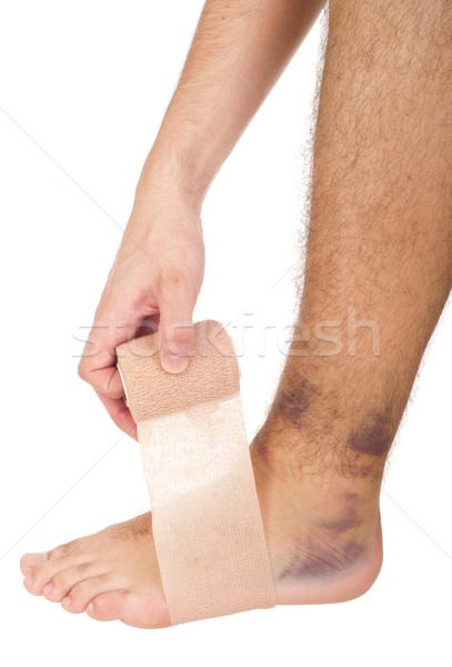 Stock photo: Bandaging a sprained ankle